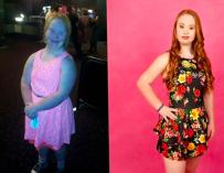 Девушка с синдромом Дауна изменила себя, чтобы стать моделью