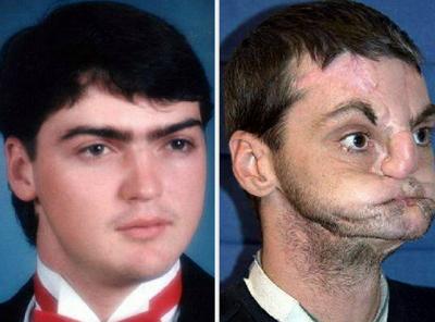 Ричард Норрис случайно застрелился в возрасте всего 22 лет.