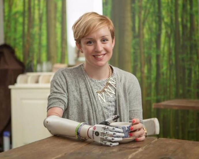 Протез bebionic предназначен для женщин и подростков (фото Steeper).