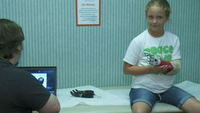 10-летняя Эбби Брюне также осваивает новую конечность (фото Bower, Chad/с сайта wwltv.com).