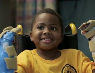 Мальчик перенес операцию по пересадке обеих рук