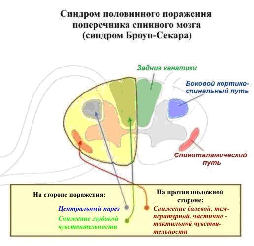 Изображение с сайта www.neurosar.ru