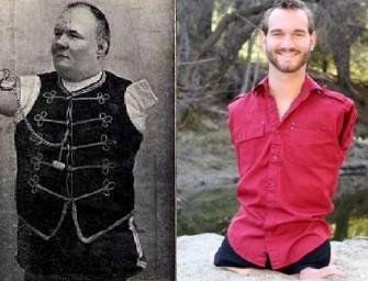 Как «обрубок» из России стал австрийским буржуа