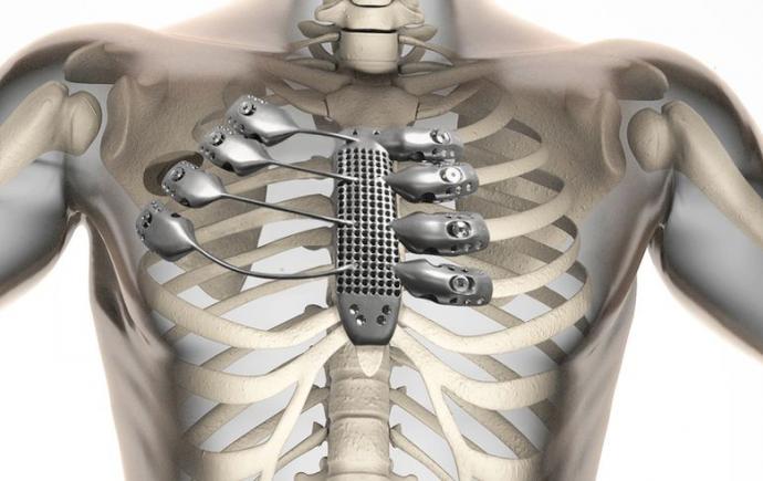 Имплантация протеза грудины и рёбер (компьютерная модель: CSIRO).