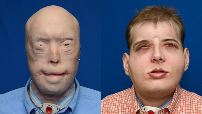 Патрик Хардисон до и после операции. Фото: nyulangone.org