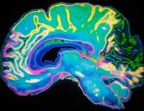 Корейские ученые успешно испытали лекарство от болезни Альцгеймера