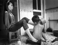Последствия войны: вьетнамская девушка, родившаяся без рук, живет полноценной жизнью и заботится о племяннике