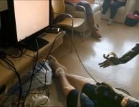 Разработан прототип протеза руки, позволяющий независимо управлять каждым пальцем
