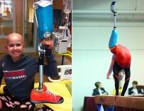 Выступление 16-летней гимнастки с протезом ноги покорило Сеть
