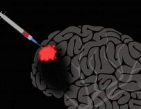Жослин Блош: Мозг может восстанавливать сам себя — с некоторой помощью
