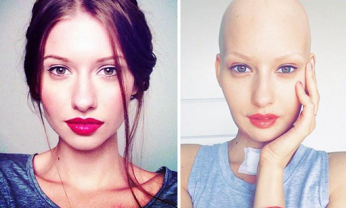 Девушка перенесла сложнейшую операцию и курсы химиотерапии