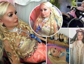 Парализованная девушка превратила себя в куклу Барби