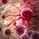 Ученые взломали код раковой опухоли