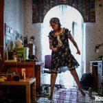 Саша: жизнь после пожара. Фотоистория о невероятном желании жить.