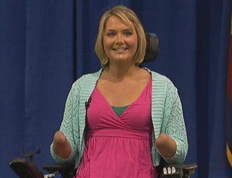 Эйми Коупленд: Она сняла все свои протезы и явила миру ампутированные руки, ноги, шрамы и… улыбку!