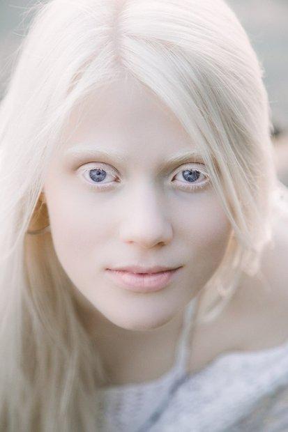 beloruska_albinos_001