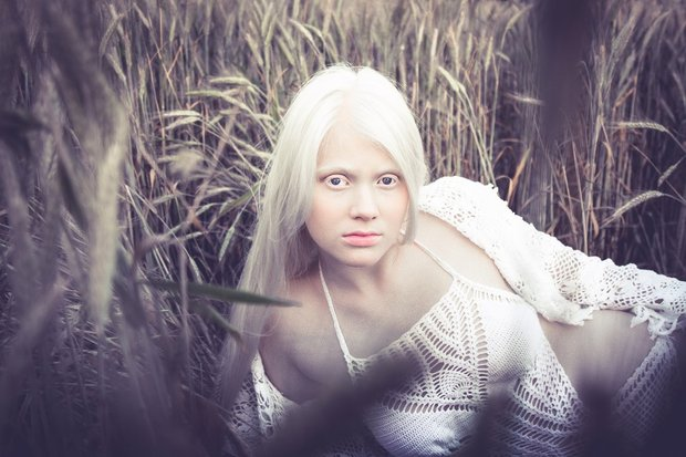 beloruska_albinos_002
