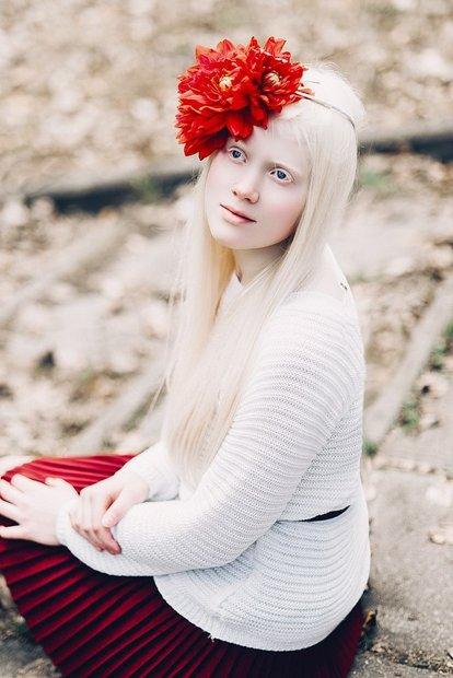 beloruska_albinos_005