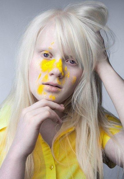beloruska_albinos_007