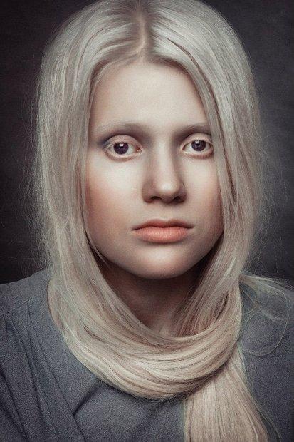 beloruska_albinos_014