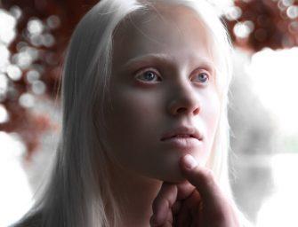 """Белоруска-альбинос: """"Родители с детства говорили мне, что я уникальна"""""""