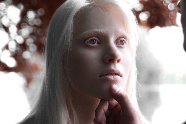 beloruska_albinos_015