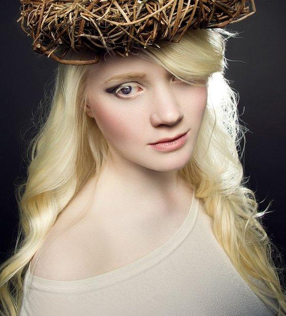 beloruska_albinos_016