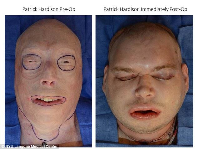 Непосредственно до операции и сразу после пересадки.