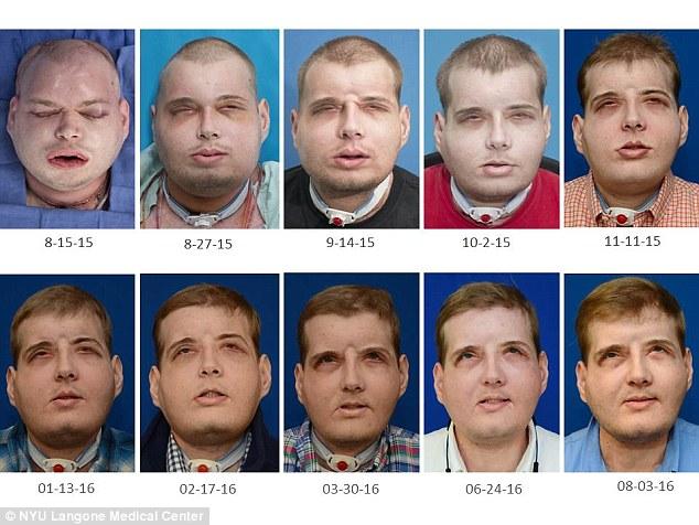 Лицо Хардисона после операции постепенно менялось: трансплантат адаптировался к форме черепа, а еще одна операция позволила избавиться от дыхательной трубки.