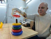 Создатель механического протеза: «IKEA можете собрать? И его соберете»