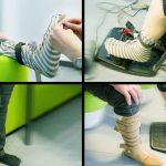 Протезы нижних конечностей усовершенствуют с помощью носка
