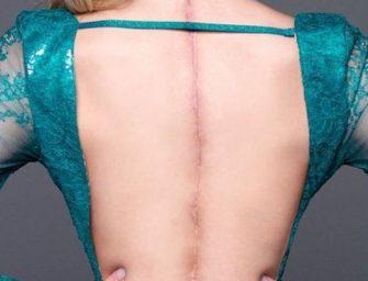 Королева красоты из США объявила войну разрывам кожи